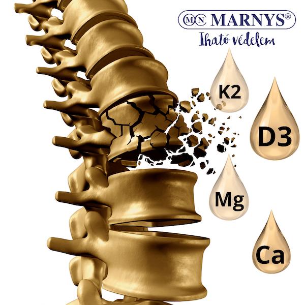 Csontritkulás és a vázrendszer egészsége